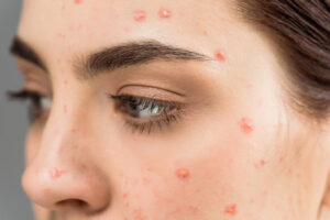 7 Natural Ways to Get Rid of Pimples Fast
